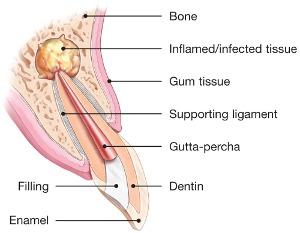 Endodontic surgery explained