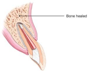 Endodontic Surgery Healed