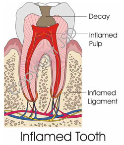 Graphic of an Inflamed Tooth